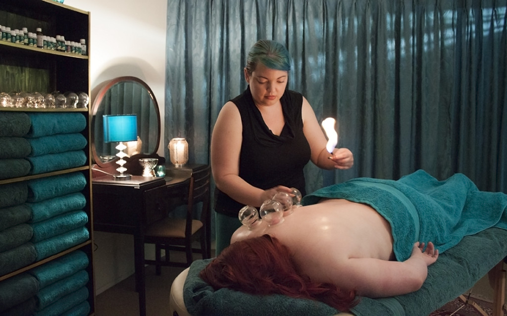 Female performing cupping with flame on female patient